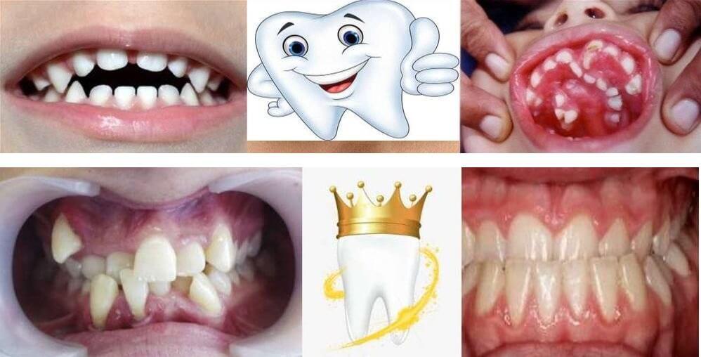 Зубные аномалии