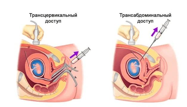 Узнать пол по биопсии ворсин хориона