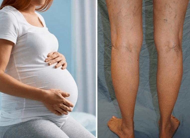 Варикоз на 40-й неделе беременности