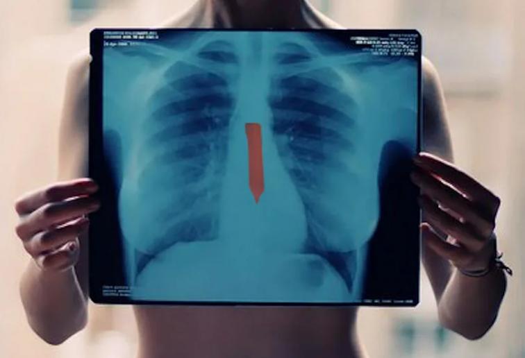Можно ли делать рентген и флюорографию на 1-й неделе