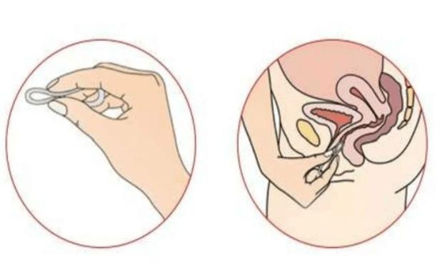 Кольцо от зачатия