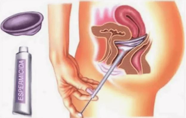 Диафрагма от зачатия